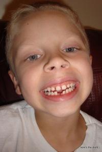 luke missing tooth